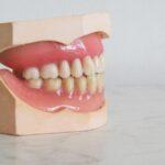 teeth whitening service, perfect teeth